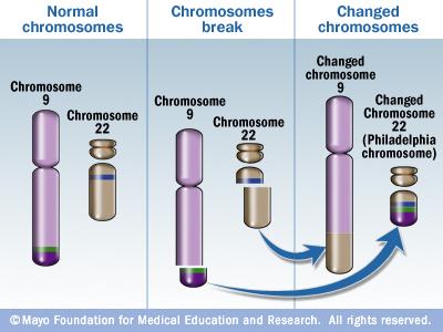 philadelphia_chromosomethu_jpg